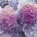Descoberto químico que leva células cancerígenas à destruição