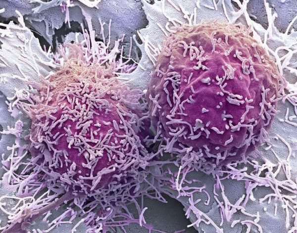 carcinoma_microscopio