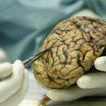 Alzheimer poderá ser transmitido por transfusão de sangue?