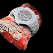 Cientistas desenvolveram os primeiros raios X 3D coloridos do mundo
